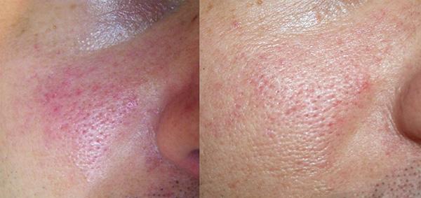 prije (slika lijevo) - nakon 2 tretmana (slika desno)