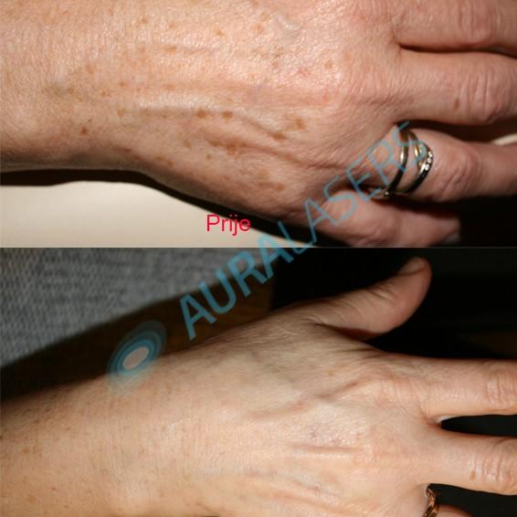Pigmentacije ruke