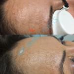 Pigmentacije čelo