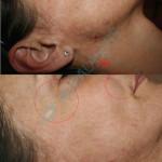 Rejuvinacija lica