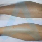 epilacija noge lijevo