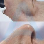 kapilari nos