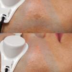 pigmentacije za sajt